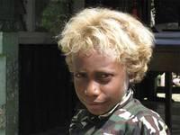 Меланезиец-блондин (Соломоновы острова)