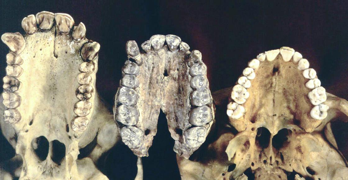 Chimpanzee teeth vs human teeth