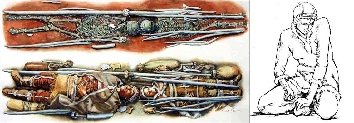 Палеопатология